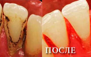Можно ли удалять зубной камень если есть коронки