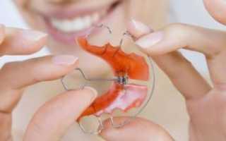 Пластины для выравнивания зубов и исправления прикуса у детей: разновидности, особенности, отзывы