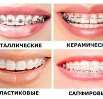 Выравнивание зубов у взрослых в украине
