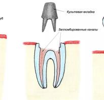 Восстановление зуба с одной стенкой