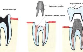 Реставрация зубов с помощью штифтовых ко