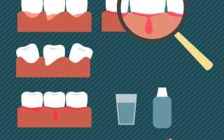 Пародонтит и боль в горле