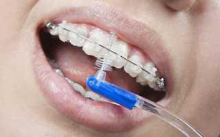 Зубная щетка для брекетов: какие ершики лучше, можно ли чистить электрической?