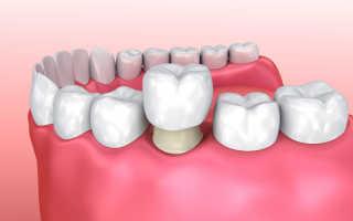 Стоимость зубной коронки из металла