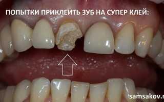 Чем можно приклеить коронку к зубу в домашних условиях