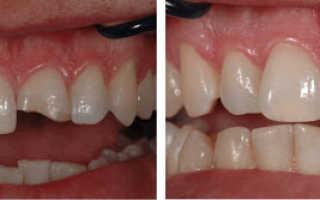 Реставрация фронтальных и жевательных зубов в чем разница?