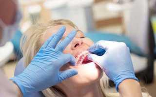 Прозрачные капы для выравнивания зубов и исправления прикуса