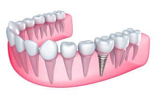 Установка коронок на импланты в стоматологической клинике Денталь