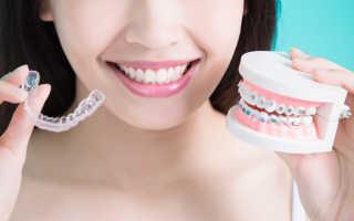Каппа на зубы для выравнивания