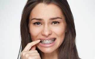 Болезненность зубов при брекетах — Сколько болят зубы после установки брекетов