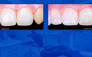 Реставрация зуба отличается по цвету
