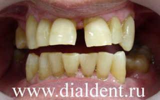 Зубные коронки при пародонтозе