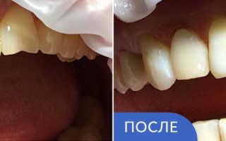 Чистка зубов и реставрация