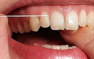 Как правильно чистить зубные металлокерамические коронки