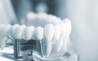 Как изготавливают коронки на зубной имплант