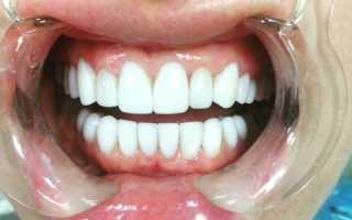 Художественная реставрация эмали зубов