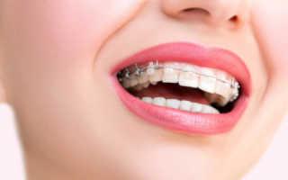 Выравнивание зубов больно ли