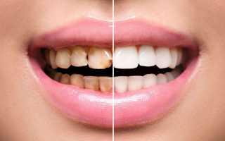 Рекомендации после реставрации зуба