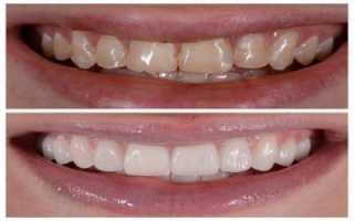 Что такое реставрация зубов и как ее делают