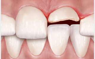 Зубные коронки или наращивание