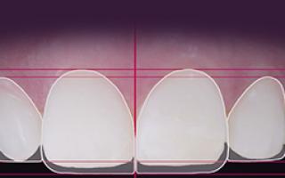 Реставрация полностью разрушенного зуба