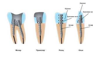 Реставрация зубов с применением штифтов