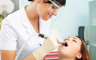 Реставрация зубов по мартынову