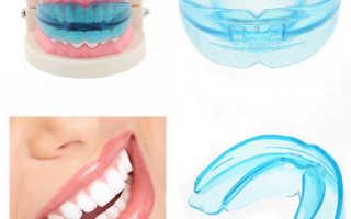 Трейнеры для зубов в Москве для взрослых, фото, как купить трейнеры