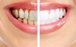 Реставрация зубов от белых пятен