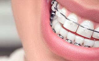 Эластопозиционер для выравнивания зубов