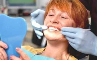 Виды зубных мостов — как выбрать