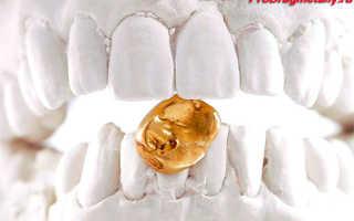 Чем покрывают зубные коронки под золото