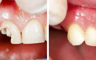 Когда нельзя ставить зубную коронку