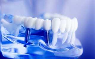 Типы материала зубных коронок