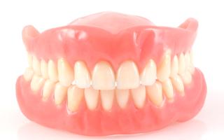 Достоинства и недостатки разных видов зубных мостов