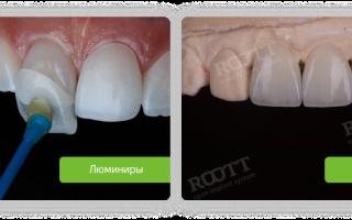 Моделирование зуба художественная реставрация