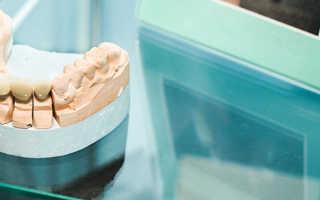 Циркониевые коронки для реставрации и восстановления сильно разрушенных зубов
