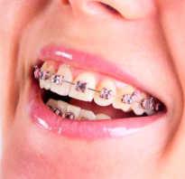 Что делать, если сломана челюсть? — Про исправление прикуса и брекеты