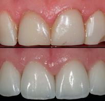 Композитная реставрация зубов фотополимерами: методы, отзывы, фото пациентов