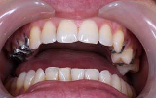 И зубные коронки чего могут изготавливаться