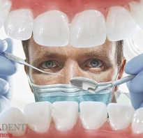 Подпиливание зубов — о процедуре и можно ли выполнить дома