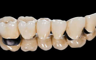 Поставить коронку на зубной протез