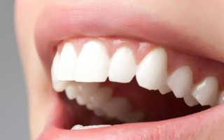 Стоимость вкладок для реставрации зубов