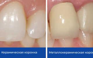 Зубные коронки протезирование зубов