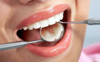 Когда нужно делать реставрацию зубов
