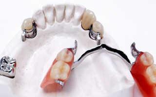 Что такое зубные коронки на замках