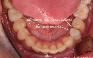 Попадает пища между коронкой и зубом