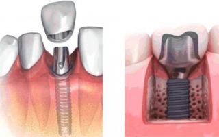 Временные зубные коронки из пластмассы