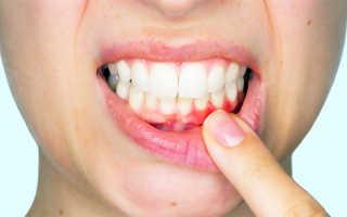 Пародонтит: причины появления, осложнения, методы лечения