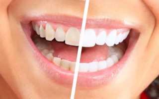 Покрытие зубов для белизны и выравнивания